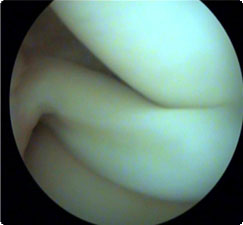 artroskopia