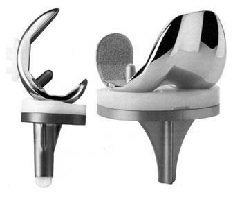 Metalowo-polietylenowa proteza kolana